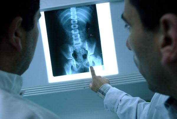 PARLA Rayos X para el centro de salud Isabel II